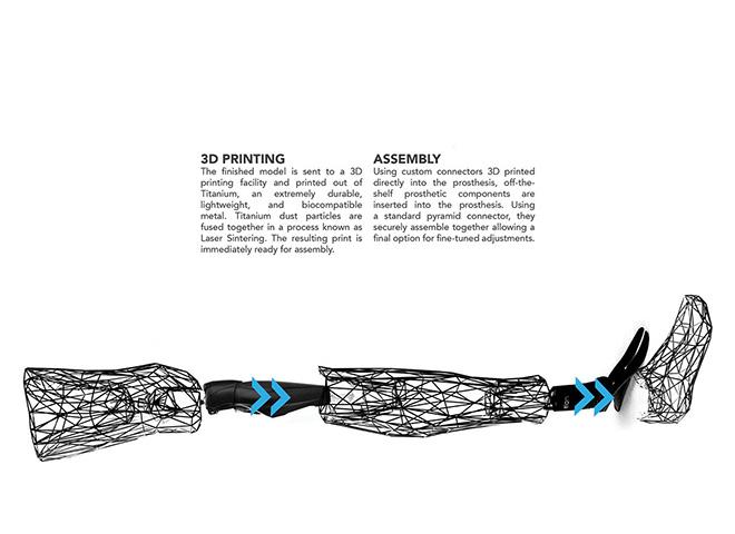 Exo Prosthetic Leg - La protesi del futuro