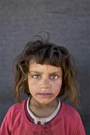 Muhammed Muheisen / AP Photo - Mona Emad, 5 anni, siriana. La foto è stata scattata l'11 marzo in un campo profughi vicino al confine siriano nella periferia di Mafraq, Giordania.