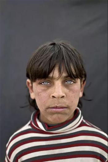 Muhammed Muheisen / AP Photo - Rakan Raslan, 11 anni, viene da Hama, Siria. La foto è stata scattata il 12 marzo in un campo profughi vicino al confine siriano nella periferia di Mafraq, Giordania.