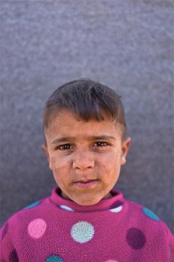Muhammed Muheisen / AP Photo - Omar Suliman, 5 anni, viene da Hassakeh, Siria. La foto è stata scattata l'11 marzo in un campo profughi vicino al confine siriano nella periferia di Mafraq, Giordania.