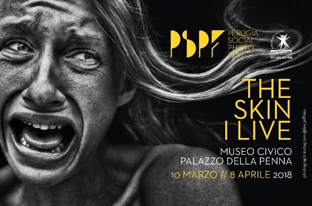 Perugia Social Photo Fest - THE SKINE I LIVE, Museo Civico Palazzo della Penna