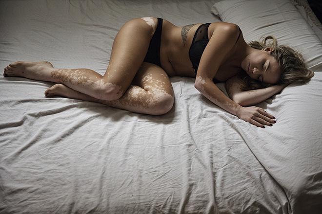 Rosa Mariniello - Vitiligo